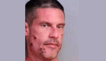 Florida man Michael Lester called 911 to report his own DUI